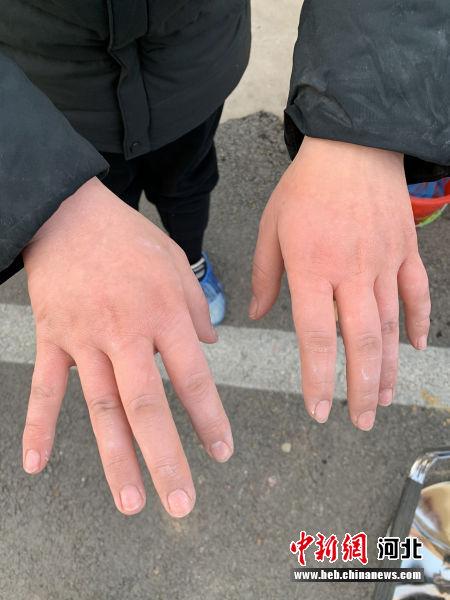 医护人员的双手被冻肿胀。 高阳援藁城核酸采样队供图